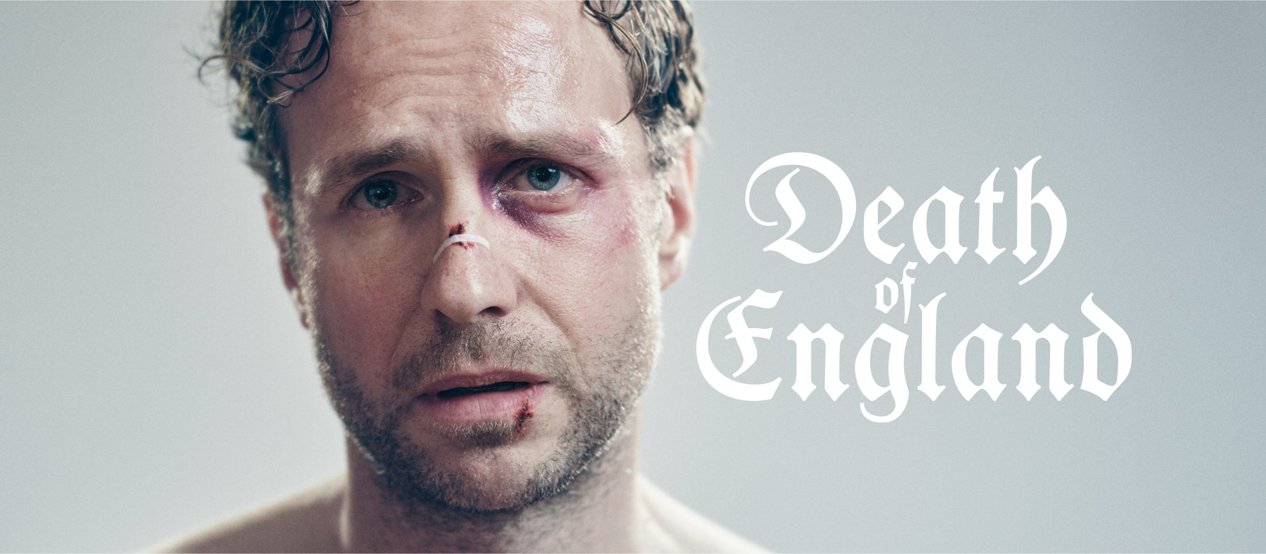 Death of England - portrait of Rafe Spall, injureded and distressed
