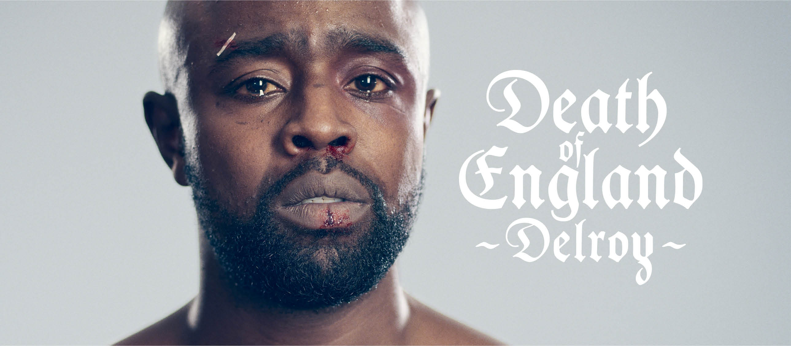 Death of England: Delroy - portrait of Michael Balogun, with cuts and sticking plaster
