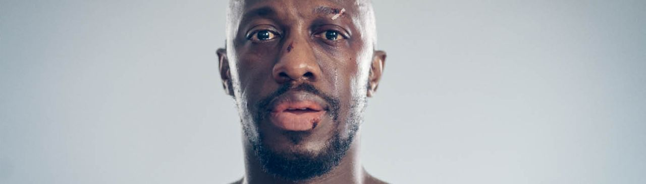 Death of England - portrait of Giles Terera, with cuts and sticking plaster